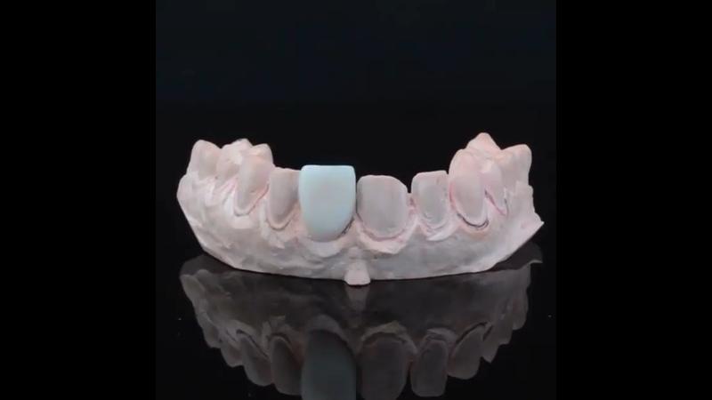 Видео от Доктор Капил Кхурана Стоматолог