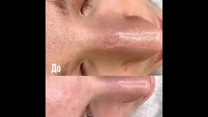 Видео от Dolce Clinic Косметологическая клиника Москва