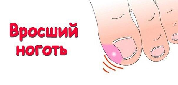 Народные методы лечения вросшего ногтя