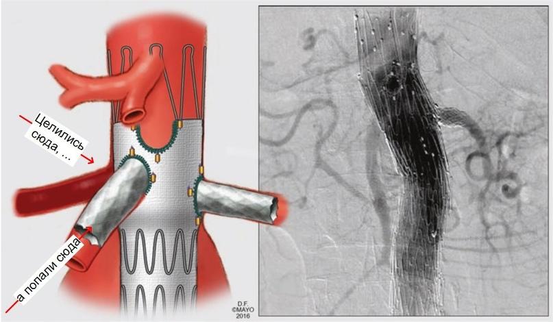При установке фенестрированного эндопротеза непреднамеренно выполнили катетеризацию верхней брыжеечной артерии (ВБА) через фенестрацию для правой почечной артерии. Попытка выполнить катетеризацию правой почечной артерии через фенестрацию для ВБА не увенчалась успехом.