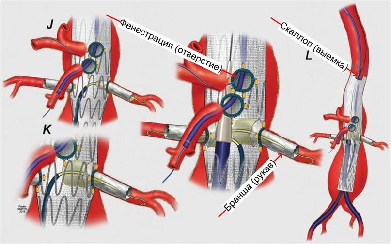Часто при таких операциях ставят несколько стентов – например, один большой в аорту, а из него через фенестрации (отверстия) и бранши (рукава) стентируют периферические артерии. Еще на краях таких стентов могут быть полукруглые или полуквадратные выемки – скаллопы, они нужны, чтобы использовать зону фиксации вокруг артерии, но при этом саму артерию не загораживать.